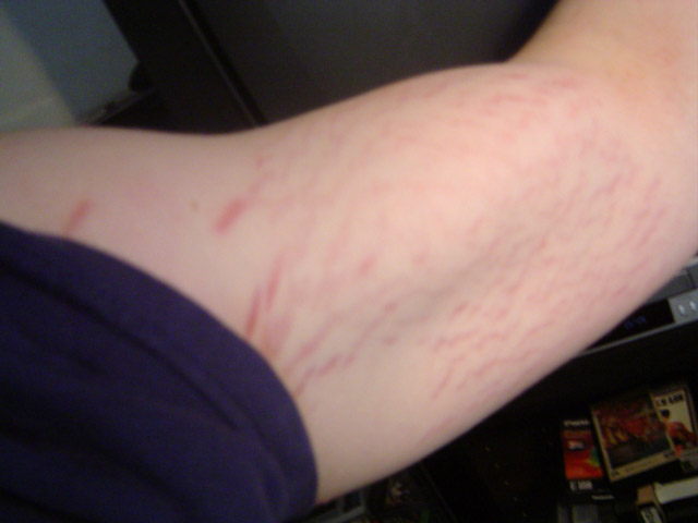 Stretch Marks Dont Look Away Bodybuilding Com Forums