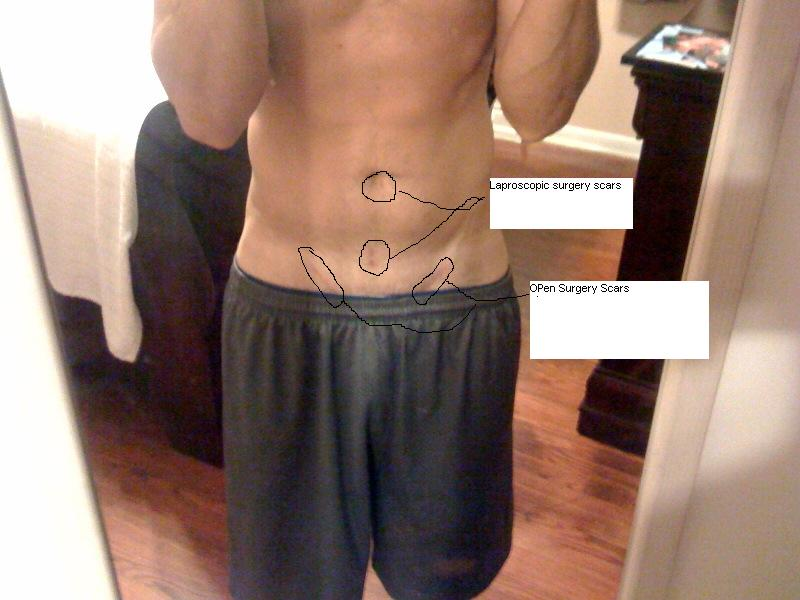 hernia operation-recovery times - Bodybuilding com Forums