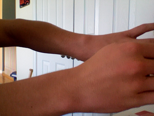 Middle Wrist Bone Sticking Out Bodybuilding Forums