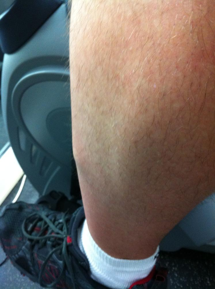 OUCH - Knots in shin muscle - Bodybuilding com Forums