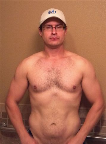 Excess skin after 60 pound weight loss