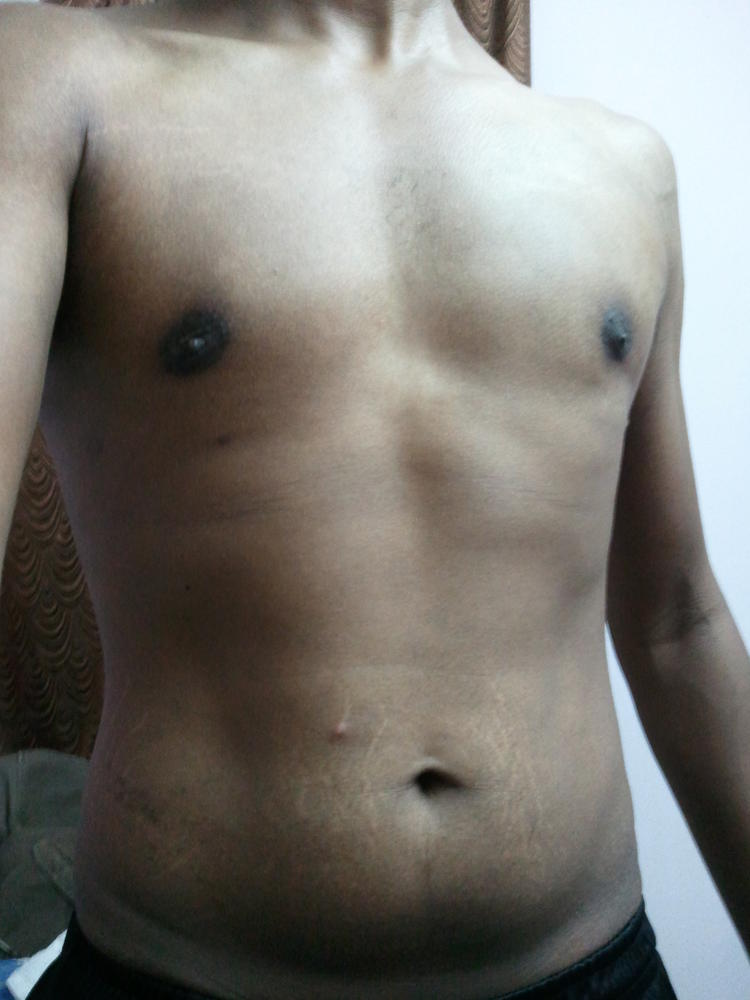 How to burn fat upper arms image 2